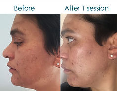 before and after mesotherapy.jpg