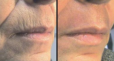 Lips Co2