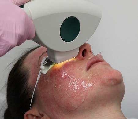 Laser Removal of Red and Brown Spots