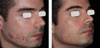 m22 skin resurfx male scar.png