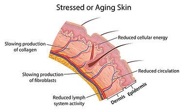 stressed_or_aging_skin-.jpg