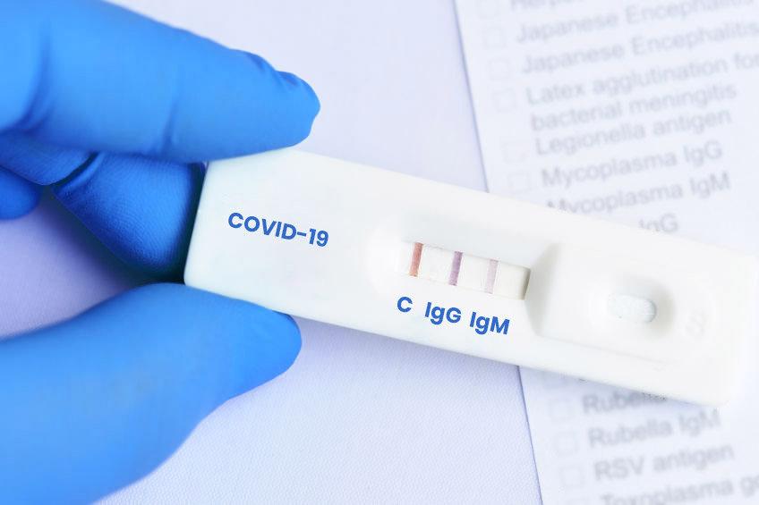 Antibody Test - IgG, IgM