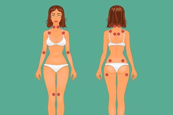 pontos-dolorososfibromia.jpg