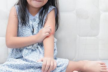 Tratamento para Dermatite Atópica
