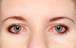 Tratamento Conjuntivite Alérgica
