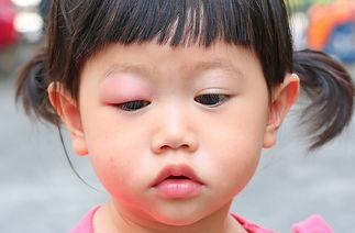 Tratamento para Alergia a Picada de Mosquito