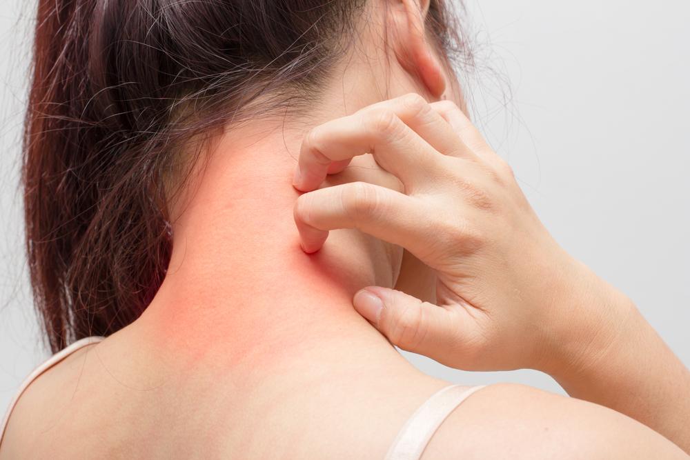 Tratamento para Dermatite