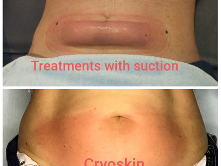 Cryoskin vs Other cold treatments with suction