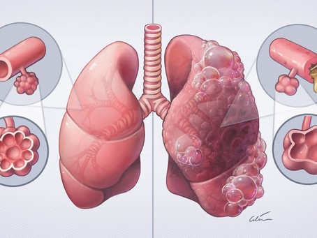 What is Chronic Obstructive Pulmonary Disease (COPD) ?