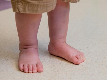Flatfoot (a.k.a Pes Planus)
