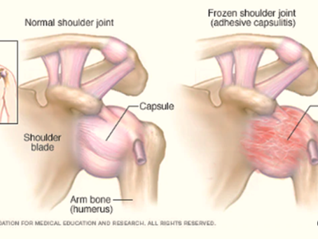 Frozen Shoulder