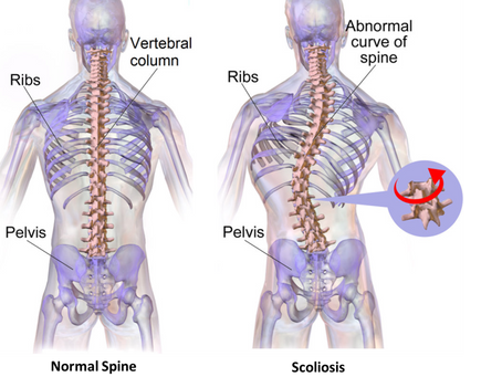Untreated Adolescent Idiopathic Scoliosis - A Dangerous Curve