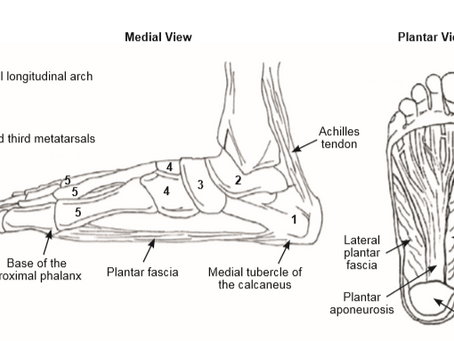 Plantar Fasciitis  -  What Is It?