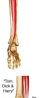 Is it possible to acquire flat foot? And also simple exercises to fix it if you have it.