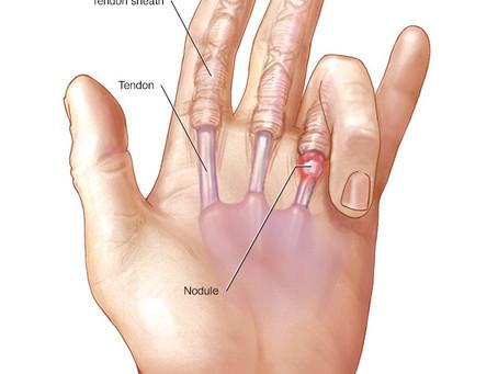 My finger is stuck! (Trigger Finger)