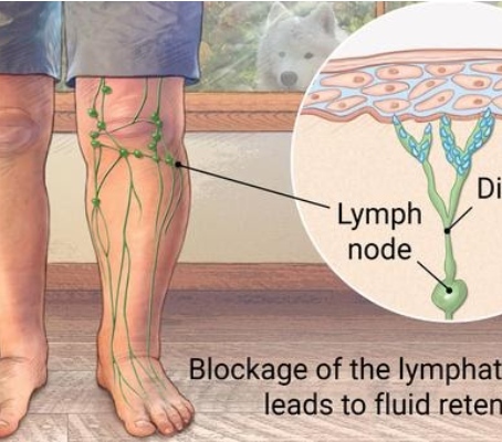Swelling? Could It Be Lymphedema?