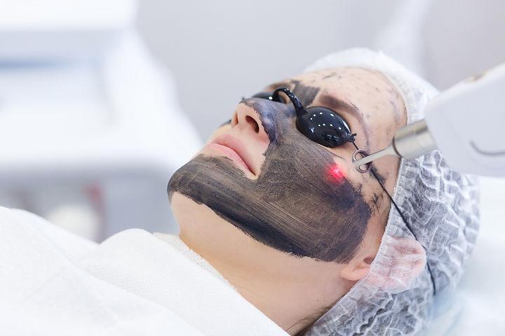 Juli-Carbon-Laser-Peeling.jpg