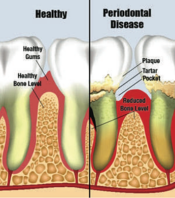 periodontal assessment and maintenance Chase and kotula provides periodontal maintenance, a treatment for those with repeated periodontal flareups ☎ 415-499-7700 when repeated periodontal flare ups continue to occur our office provides periodontal maintenance patients who require a more diligent oral hygiene routine are scheduled.