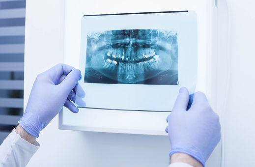 Dental Exam and Cleaning in Miami