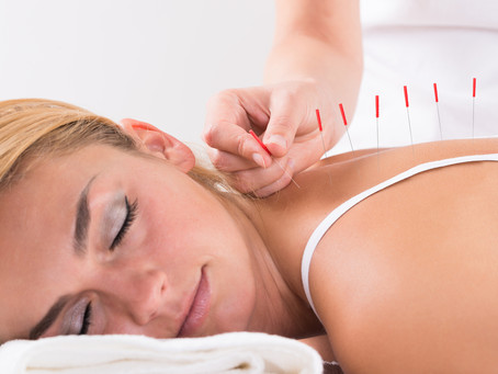 Acupuncture Lowers Blood Glucose