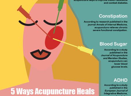 5 Ways Acupuncture Heals