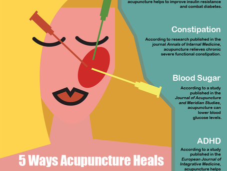 5 Ways Acupuncture Heals