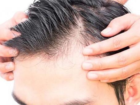 Alopecia: Alimentación y Salud de tu cabello. Tu pelo es lo que comes.