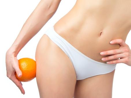 ¿Por qué la celulitis elige a la mujer? Medidas que la combaten
