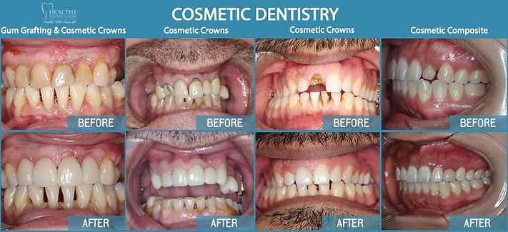 Cosmetic dentist in Des Plaines, cosmetic dentist in niles