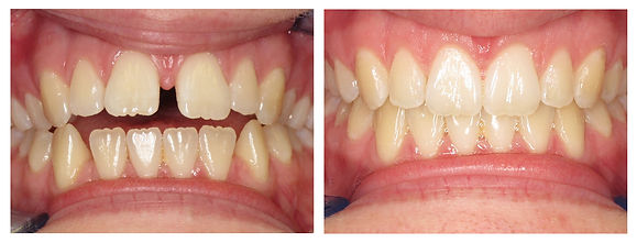 top invisalign dentist des plaines illinois, top invisalign dentist niles illinois