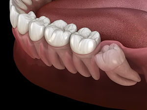 impacted wisdom tooth removal in Des Plaines illinois, impacted wisdom tooth removal in Niles Illinois