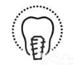 vector dental implant_edited.jpg