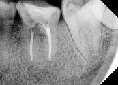 Tooth reimplantation in Des Plaines, Tooth Reimplantation in Niles