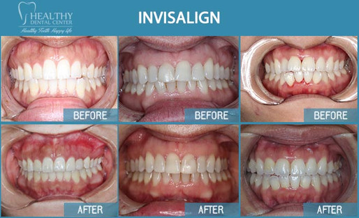 Before and Afters of Invisalign