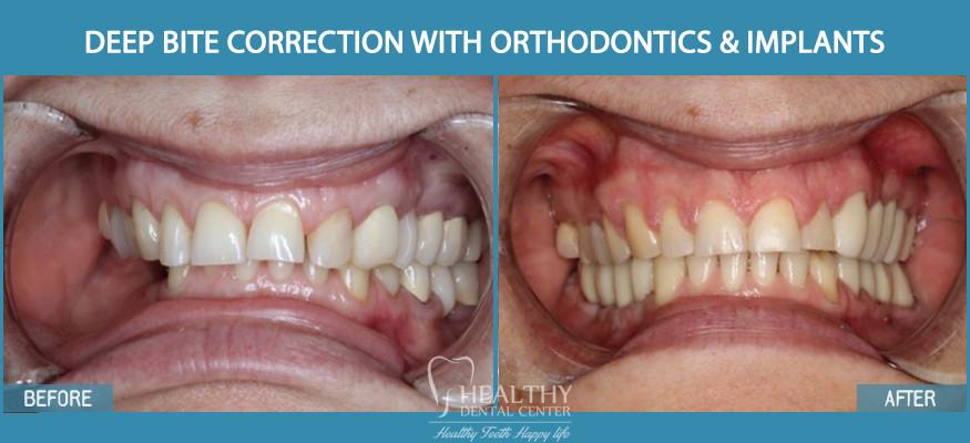 Deep Bite correction using braces and implants