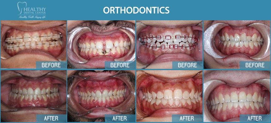Orthotontics and Invisalign