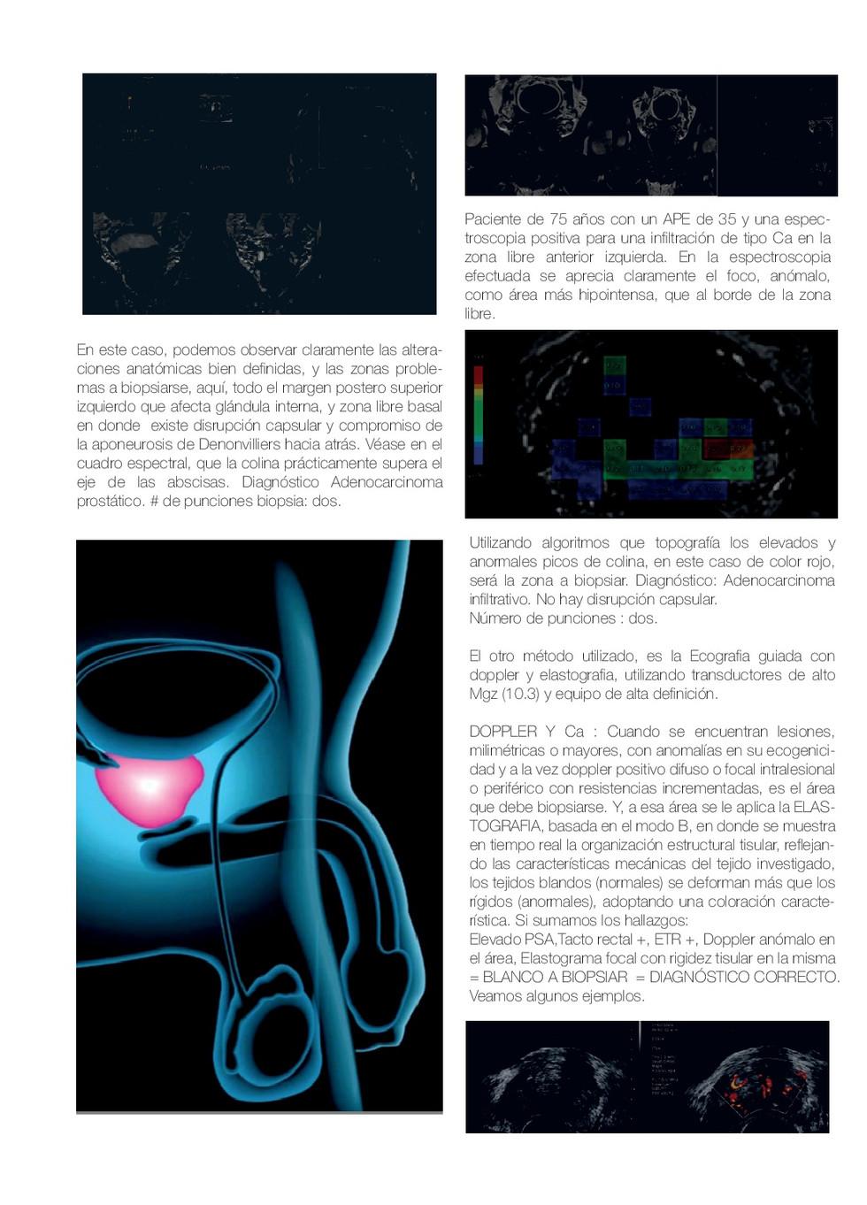 BIOPSIA-PROSTATICA-(1)-002.jpg