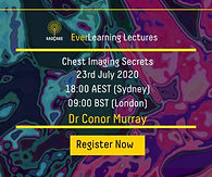 Chest Imaging: Secrets and forgotten pearls