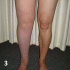 lymphoedema-specialist-hampshire-picture