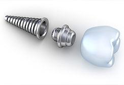 PDM_Pieces-of-Dental-Implants.jpg
