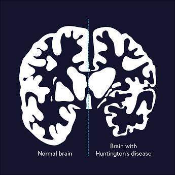 pstab0 Huntingtons Disease Article Image