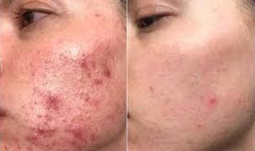 acne5 - Copy (2).jpg