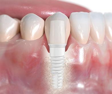 Zircone-implant.jpg
