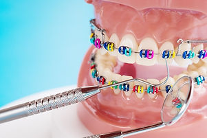 close-up-dentist-tools-orthodontic-model