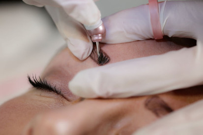The Brow Fairy Procedure.JPG