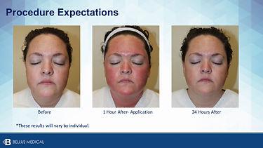 post treatment immediate (1) copy.jpg