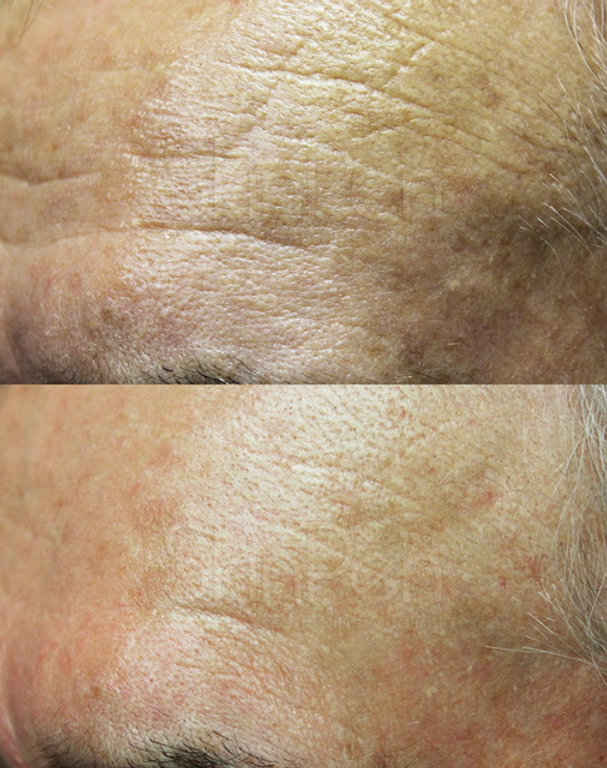 forehead wrinkles age 72 x5 procedures a
