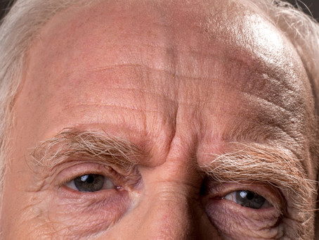 What Do Your Wrinkles Mean?