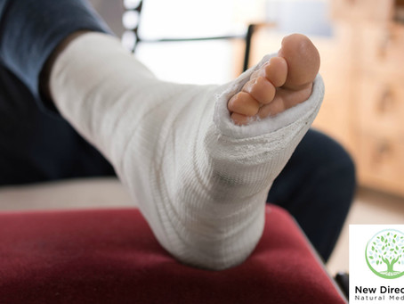 Chinese Medicine for Healing Bone Fractures