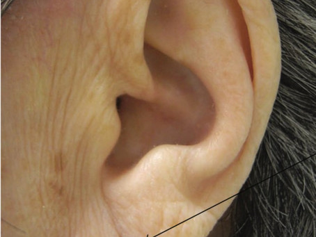 Diagonal Earlobe Crease Predicts Heart Disease